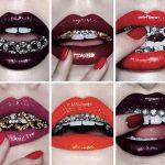 Грилзы фото – Грилзы на зубы – что это, виды, стоимость, установка – Доктор Зуб